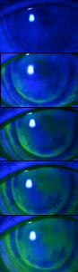 UltraHealth Tear Exchange-Photo Series