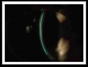 Optic Section Image 2