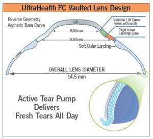 UH-FC Vaulted Lens Design