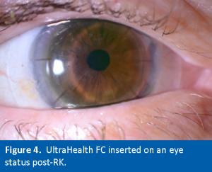 Figure4. UH-FC on Post-RK Eye