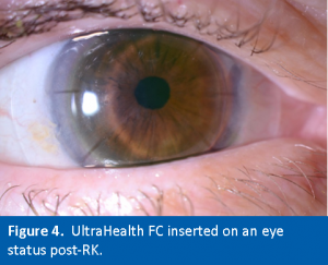 Figure4. UH-FC on Post-RK Eye