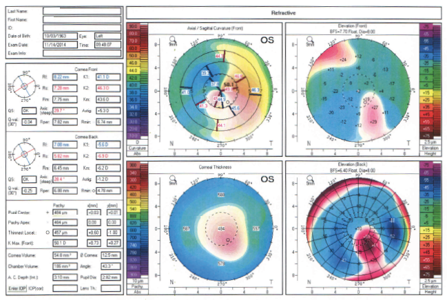 Topography OS_CS1_Ryan McKinnis OD_Patient JL