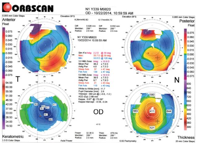 Topography OD CS1_Kristi Rhodes OD_Patient DF