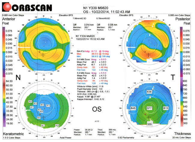 Topography OS CS1_Kristi Rhodes OD_Patient DF