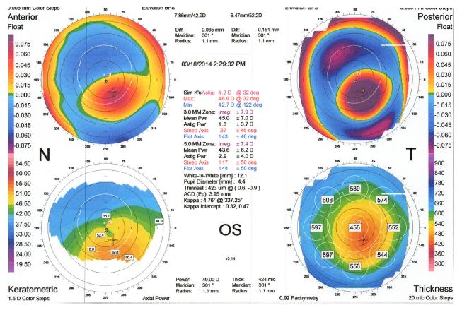 Topography OS CS2_Kristi Rhodes OD_Patient KW
