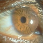keratoconus_conical_cornea-150x150