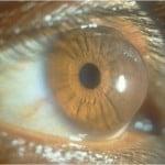 keratoconus_conical_cornea-150x150